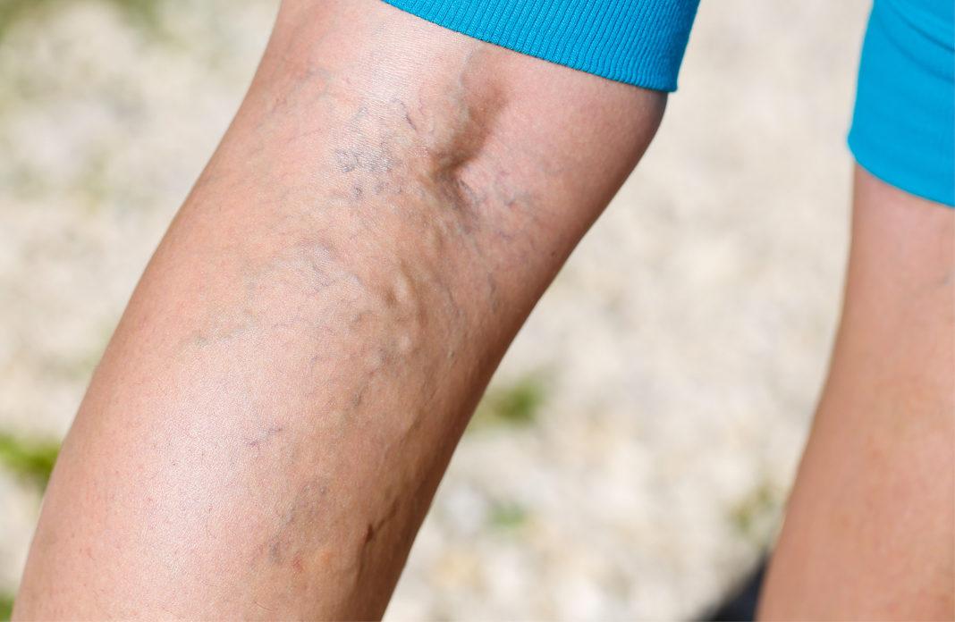 Las vasculares y causa qué muslos arañas piernas en